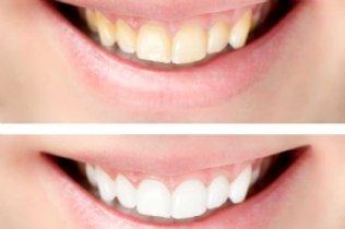 Mundhygiene & Vorsorge